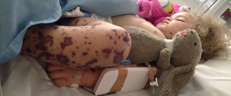 Jazmyn displays the typical rash