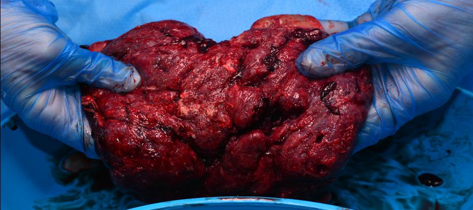 placenta-raw